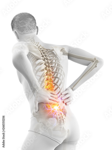 Photo 3d rendered medically accurate illustration of a man having acute back pain