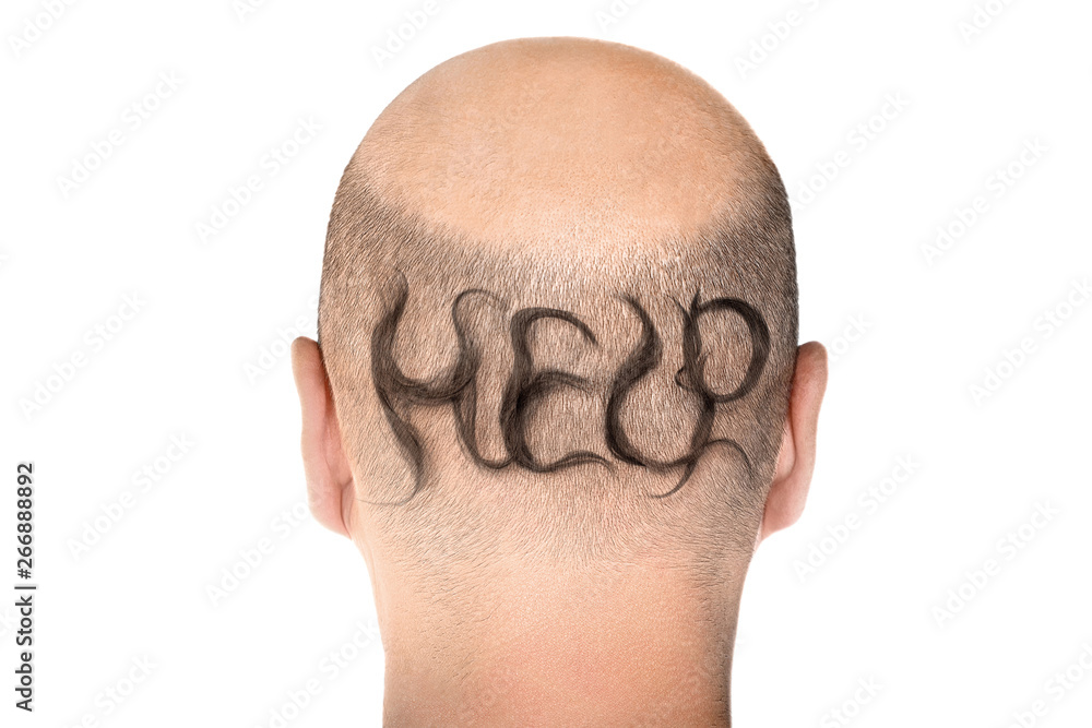 Fototapeta Concept of hair loss. Back view of balding male head isolated on white background. Detail showed alopecia