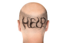 Concept Of Hair Loss. Back View Of Balding Male Head Isolated On White Background. Detail Showed Alopecia