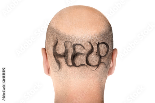 Concept of hair loss Canvas-taulu