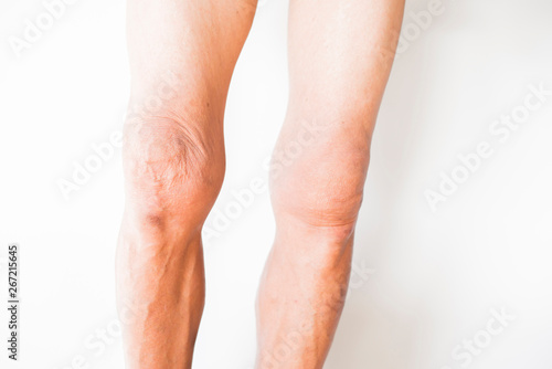 Knees that have problems with the deterioration of the bones of Canvas Print