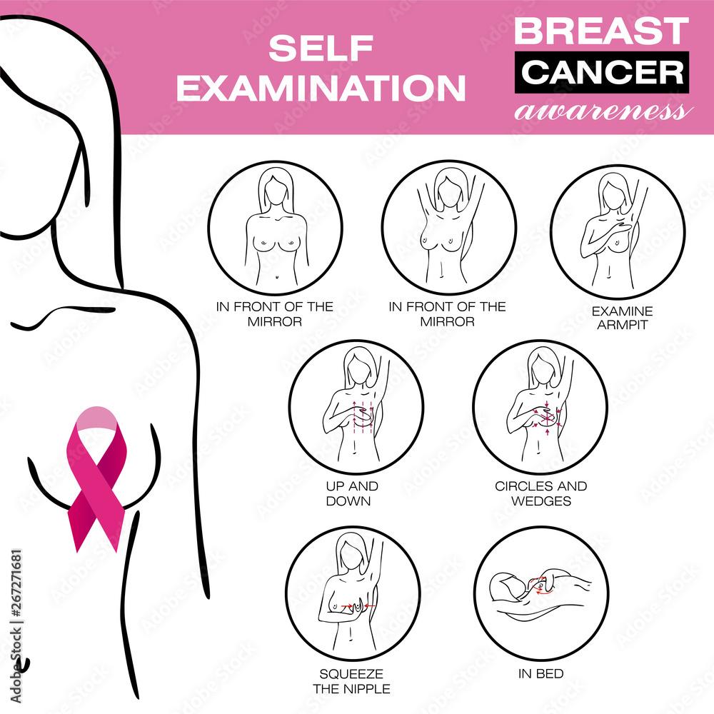 Fototapeta Breast cancer, medical infographic. Self examination. Women`s health set. Breast cancer awareness set. Healthcare poster or banner template. Diagnostics. Medicine, anatomy. Vector illustration.