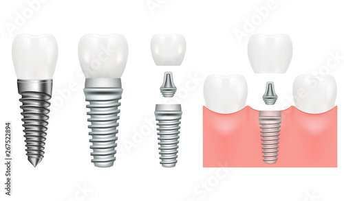 Realistic dental implant structure with all parts crown, abutment, screw Canvas Print
