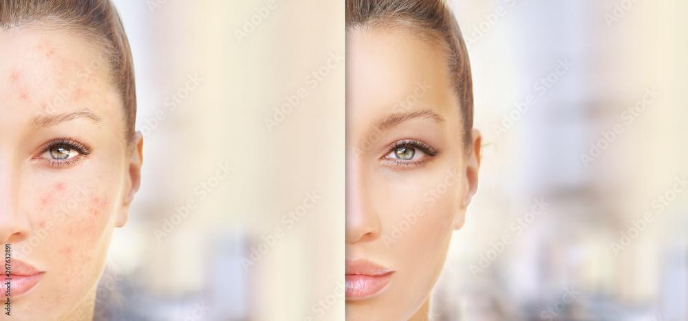 Fototapety, obrazy: Post-Acne Marks /Treating Acne Scars.Acne Scar Removal