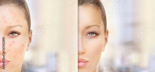 Cuadros en Lienzo  Post-Acne Marks /Treating Acne Scars.Acne Scar Removal