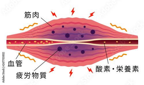 凝り・痛みが発生した筋肉(英語) / 肩こり・凝り・痛みの発生イラスト Fotobehang