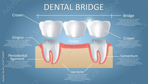 Photo Dental bridge concept vector educational poster, diagram