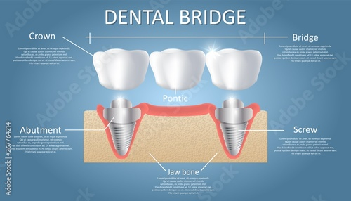 Photo Dental bridge concept vector educational poster, diagram