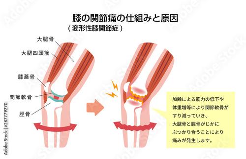 膝の関節痛(変形性膝関節症) 発生の仕組みと原因 イラスト Canvas Print