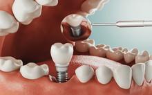 Dental Care, Modern Clinic, 3d...