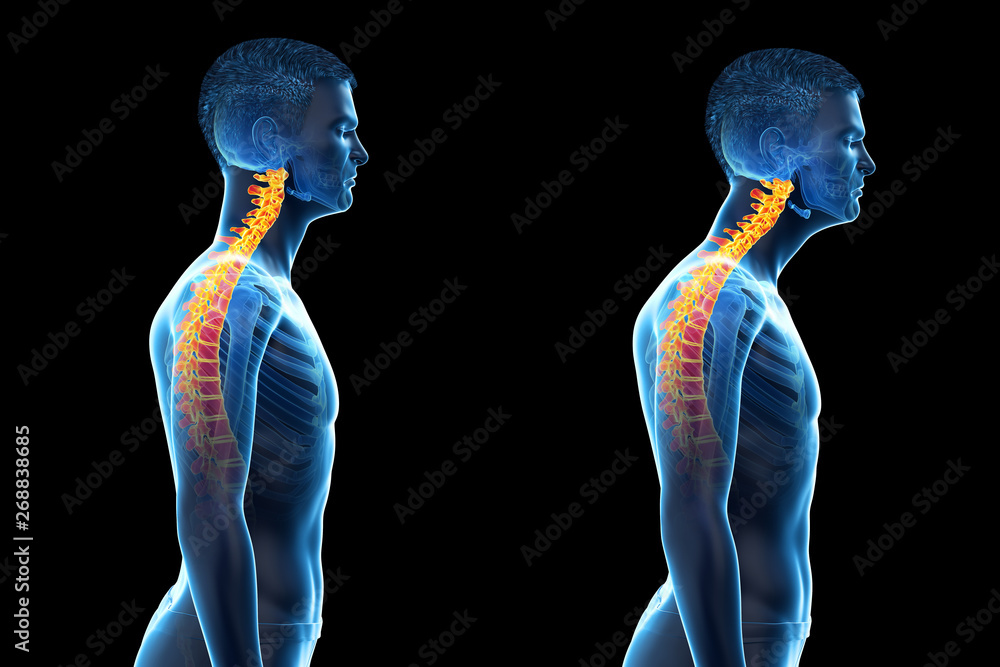 Fototapeta 3d rendered medically accurate illustration of a man with a forward head posture