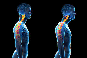 3d rendered medically accurate illustration of a man with a forward head posture