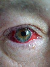 : Red Eye Following An Irritation Of The Sclera After A Grain Of Sand Entered The Eye While On A Motorcycle.  Very Painful.  The Doctor Gave Me Antibiotics