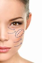 Plastic Surgery Asian Woman Ch...