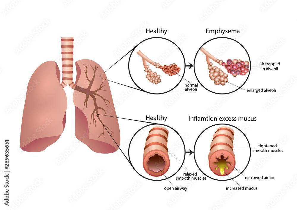 Fototapeta Chronic Obstructive Pulmonary Disease illustration