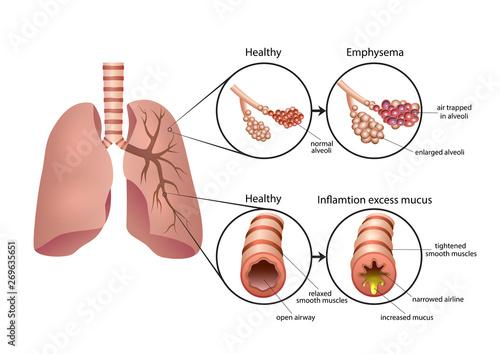 Photo Chronic Obstructive Pulmonary Disease illustration