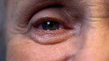 Crying Eye Of Senior Wrinkled ...