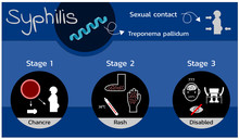 Stages Of Syphilis Disease , I...