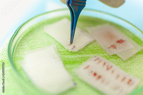 Photo Hair follicles in the Cup close-up