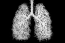 Illustration Of A Toxic Smoke ...