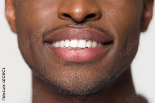 Valokuva  Close up african male having ultra white toothy smile