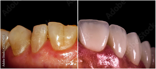 Valokuva  full ceramic veneers before and after