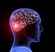 canvas print picture - Human headache migraine