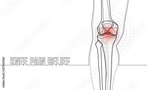 Stampa su Tela White horizontal continuous line drawing concept banner about knee pain relief