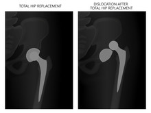 Vector Illustration X-ray Pelvis And Hip Joint, Dislocation After Total Hip Replacement. For Advertisement And Medical Publications.