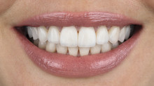Beautiful Smiling Girl With Veneers Close-up