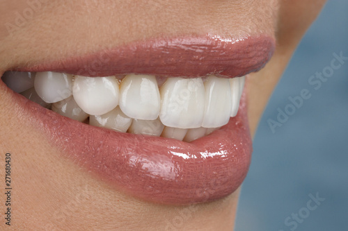 Fotografie, Obraz  beautiful smile and veneers of young woman close up