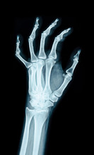 X-ray Image Of The Hand.