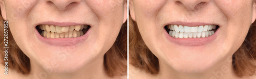 Fotografia  Teeth of a woman before and after correction and whitening