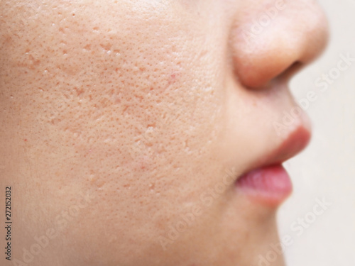 icepick scars acne on cheek on face women cause of happen because of skin loses Canvas Print