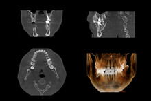 Set Of MRI Scanner Slices Of Dental Part Of Human Male Scull With Multiple Problems On White Background.