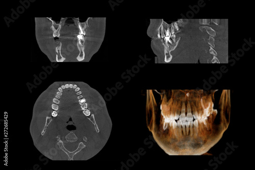 Fotografie, Obraz  Set of MRI scanner slices of dental part of human male scull with multiple problems on white background