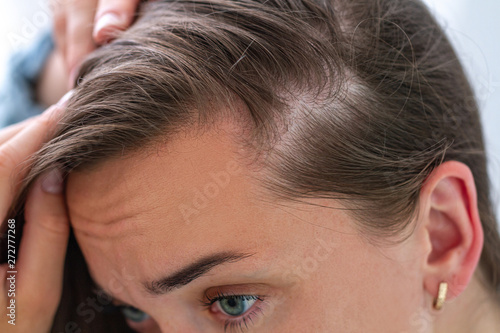 Woman suffering from hair loss. Treatment of hair problems Canvas Print