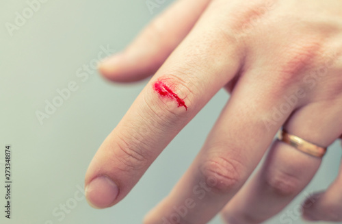 The wound on his arm  The index finger was stabbed - deep wound  the