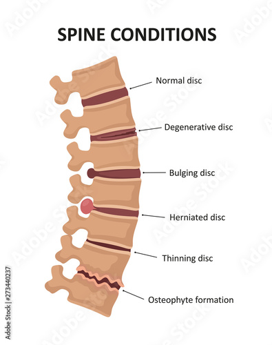 Fotografía  Stages of spinal osteochondrosis