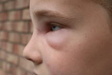 Profile Picture Of A Young Boy With Swelling Of Face Due To Hornet Sting