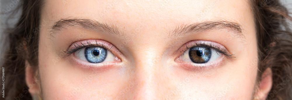 Fototapeta Human heterochromia on eyes of girl, blue one and brown one