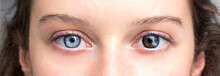 Human Heterochromia On Eyes Of Girl, Blue One And Brown One