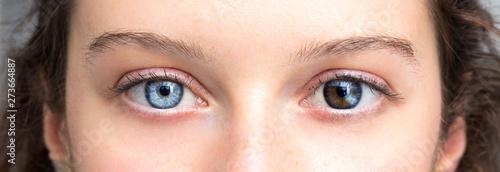 Obraz Human heterochromia on eyes of girl, blue one and brown one - fototapety do salonu