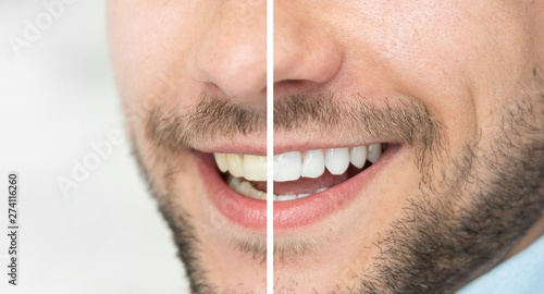 Dental care and whitening teeth compare Canvas-taulu