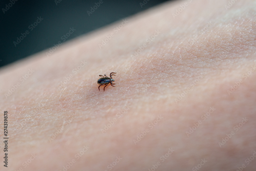 Fototapety, obrazy: Tick on human skin