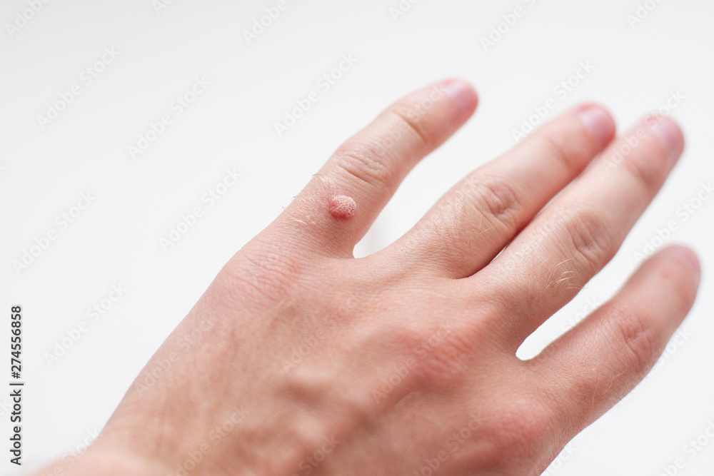 Fototapeta wart on a finger on a white background