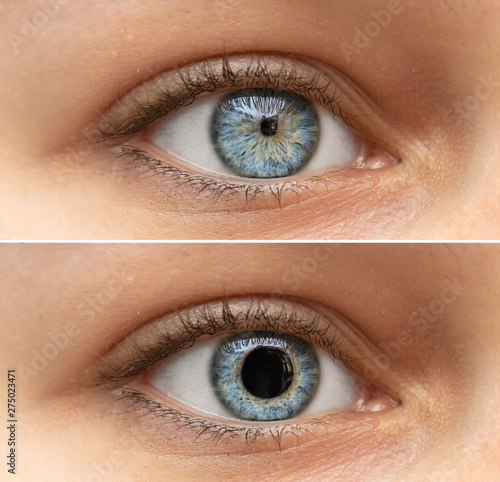A closeup view on the blue eyes of a pretty young woman Fotobehang