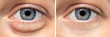 A before and after view on the eyes of a pretty young Caucasian woman, one show puffy dark circles beneath the eye, and the other shows flawless smooth skin after oculoplastic surgery.