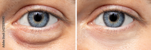 Obraz A before and after view on the eyes of a pretty young Caucasian woman, one show puffy dark circles beneath the eye, and the other shows flawless smooth skin after oculoplastic surgery. - fototapety do salonu