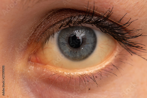 Obraz A closeup view on the eye of a young Caucasian adult with yellowing of whites (jaundice). A common symptom of liver failure that requires urgent medical attention. - fototapety do salonu